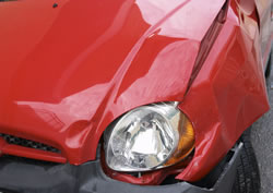 Chiropractic for Auto Injuries in Arlington, WA